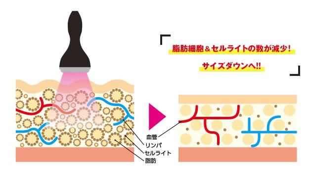 キャビテーションはセルライト&脂肪細胞そのものに働きかけます。脂肪細胞&セルライトの数が減少!サイズダウンへ!!